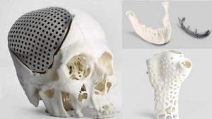 چاپ سه بعدی استخوان