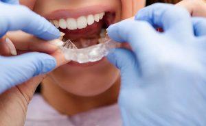 راهنمای چاپ سه بعدی دندانپزشکی