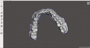 راهنمای طراحی ، اسکن و چاپ سه بعدی مدل دندان